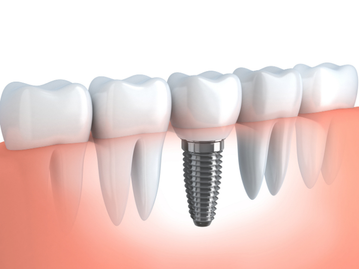 Visit a Dental Implant Clinic to Get Replacement Teeth